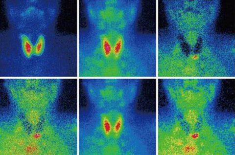 Сцинтиграфия - дополнительный метод диагностики рака ЩЖ.