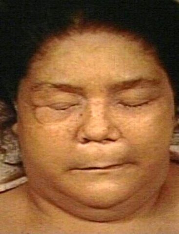 Типичный вид пациентки с микседемой (крайней степенью гипотиреоза у взрослых)