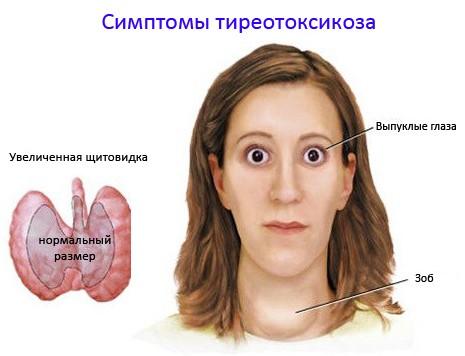 Тиреотоксикоз – гиперфункция ЩЖ