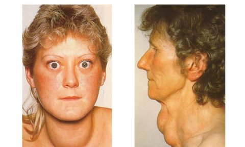 Тиреотоксиоз – внешние проявления