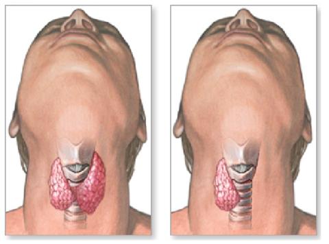Уровень тиреоглобулина в крови снижается при удалении всей щитовидной железы или ее доли