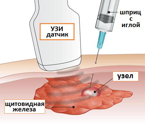 Уточнение структуры узлов проводится при помощи биопсии – забора и гистологического исследования тканей узлового образования под контролем УЗИ