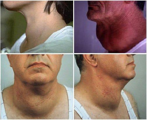 Питание и диета при узловом зобе щитовидной железы