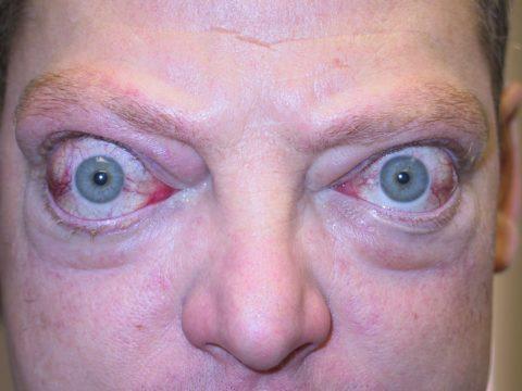 Выкаченные глаза – признак тиреотоксикоза
