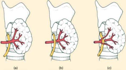 Взаимоотношение возвратного гортанного нерва (желтый цвет) и нижней щитовидной артерии