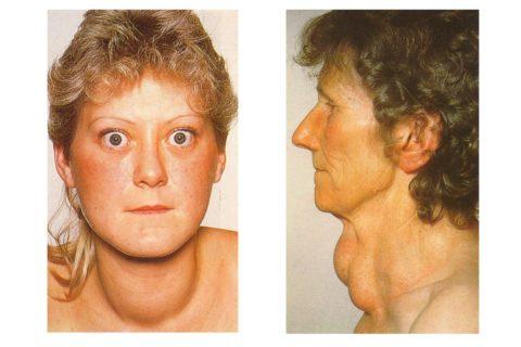Женщина, больная гипертиреозом