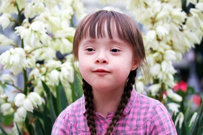 Вид больного ребенка с синдромом Дауна.