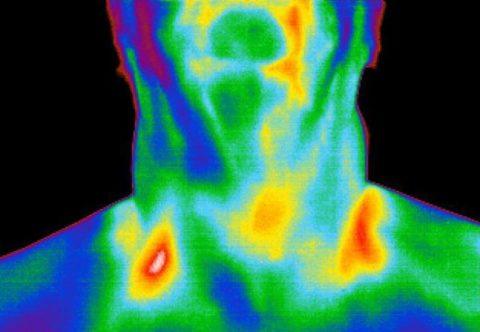 Фиксирование теплового излучения шеи тепловизором