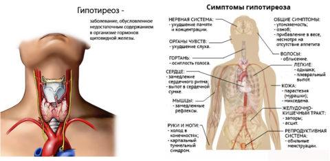 Характеристика гипотиреоза и симптоматика заболевания.