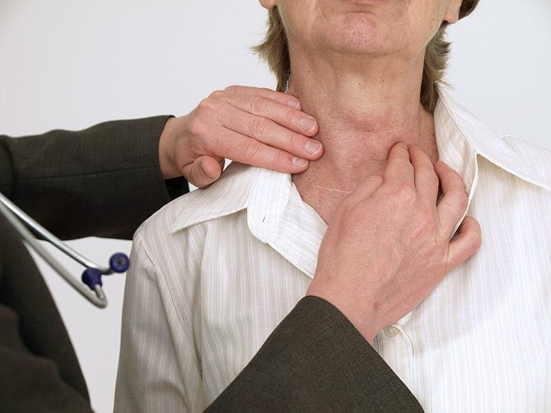 Аутоиммунный тиреоидит: симптомы, лечение, осложнения
