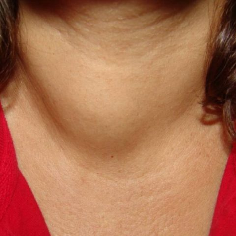 На фото представлено горло женщины с явным увеличением в объёме щитовидной железы.