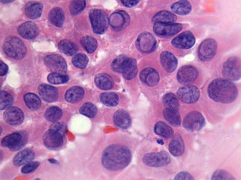 Папиллярная карцинома щитовидной железы