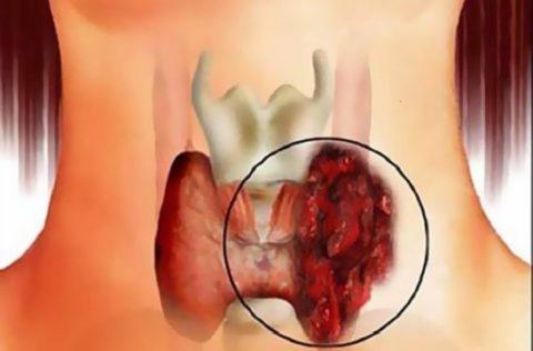 При онкопатологиях ЩЖ важно поддерживать минимальный уровень ТТГ
