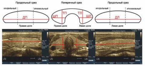 Пример измерения размеров щитовидной железы при УЗИ