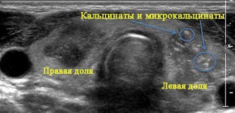 Различные виды кальцинатов щитовидки