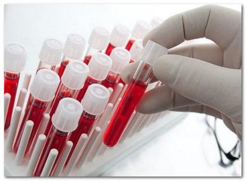 Разные лаборатории могут пользоваться разными системами для определения содержания Т3