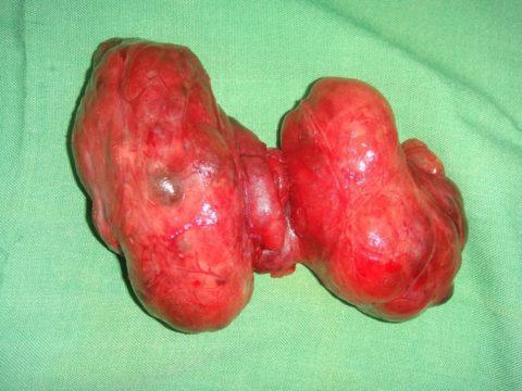 Удалённая щитовидная железа классическим оперативным методом.