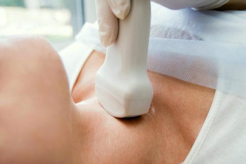 УЗИ- общепризнанный метод диагностики узлового зоба.
