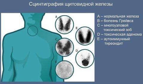 При помощи сцинтиграфии можно с достаточной точностью установить или подтвердить диагноз