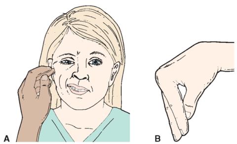 Симптома Хвостека: простота проверки и достоверный результат.