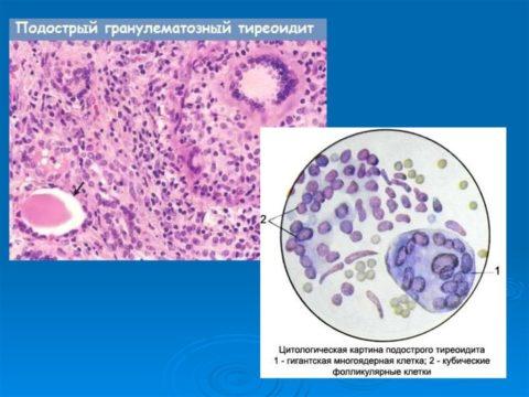 Цитологические изменения при гранулематозном подостром тиреоидите