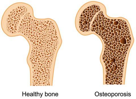 Анализ содержания кальцитонина поможет выявить наличие остеопороза