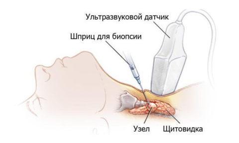 Биопсия – самый точный способ определить из какого рода тканей состоит узел