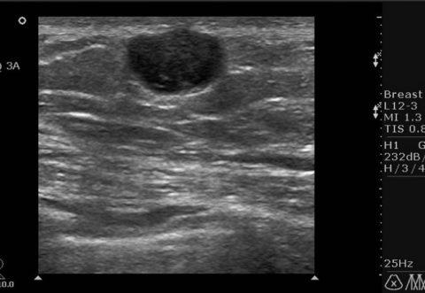 Большое единичное гипоэхогенное образование щитовидки