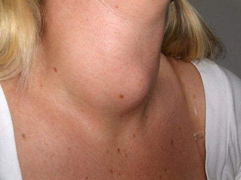 Большой узел щитовидки, который определяется невооруженным глазом