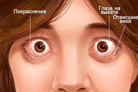 Экзофтальм является одним из самых ярких симптомов базедовой болезни