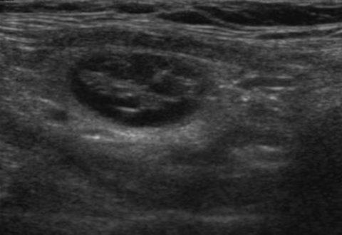 Коллоидный узел при ультразвуковом исследовании