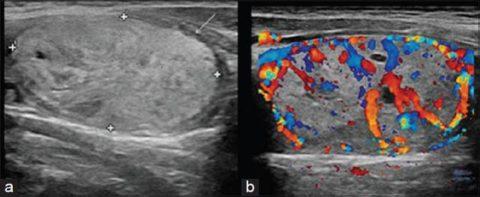 Обычное УЗ-исследование и допплерография одного и того же патологически измененного фрагмента щитовидки