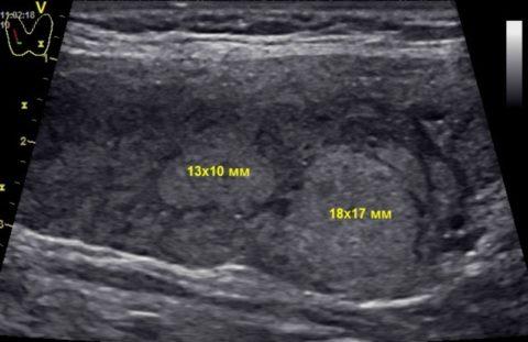 Примеры гипоэхогенных новообразований щитовидки