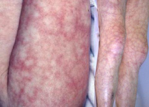 Мраморная кожа при детском гипотиреозе