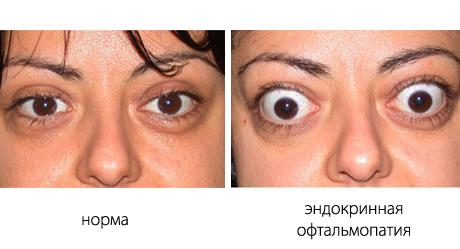 Офтальмопатия при базедовой болезни
