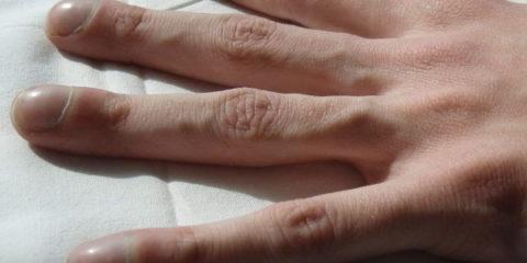 Пальцы в форме «барабанных палочек»