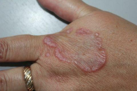 Проявления кольцевидной гранулемы
