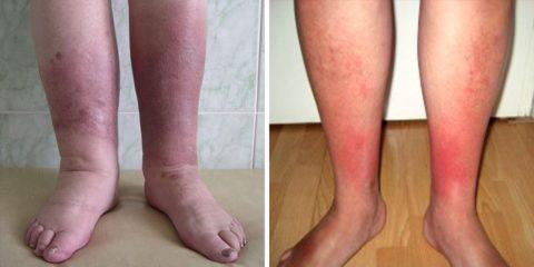 Рожистое воспаление кожи голеней