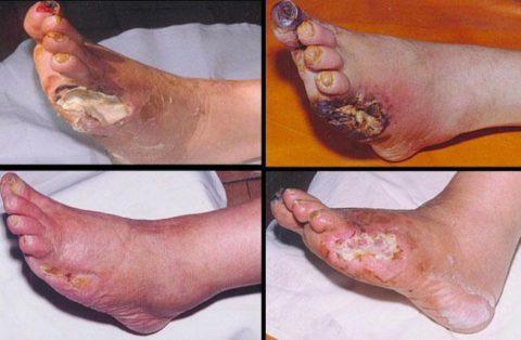 Степени изменения кожных покровов при диабетической ангиопатии