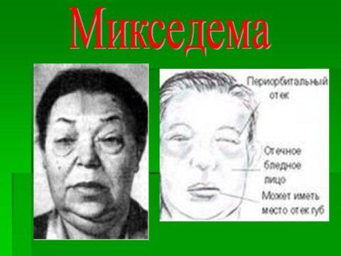 Типичный внешний вид лица больного микседемой