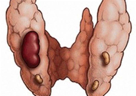 Тиреотоксическая аденома