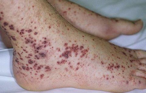 Тромбоцитопеническая пурпура также встречается в сочетании с АИТ