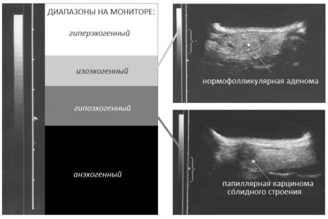Виды эхогенности щитовидной железы, УЗИ-примеры патологий, подтверждённых ТАПБ