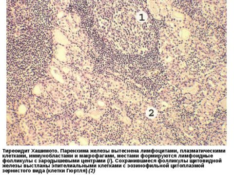 Фото и описание гистологического препарата ткани щитовидной железы с тиреоидитом Хашимото
