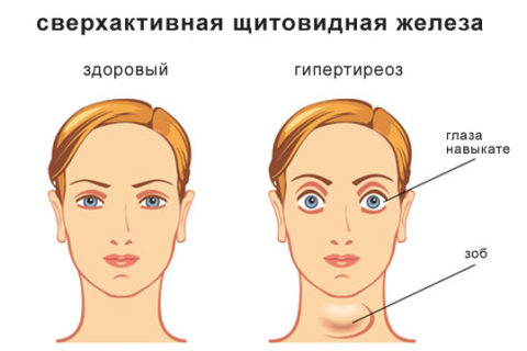 Гипертрофическая форма