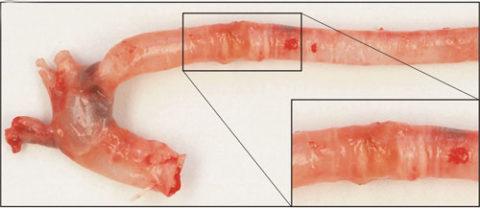 Кальциноз аортальных стенок встречается намного чаще среди женщин, больных гипотиреозом