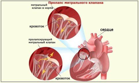 Миксоматозный пролапс митрального клапана развивается под влиянием тиреотоксикоза