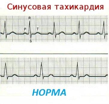 Синусовая тахикардия является одним из самых распространенных проявлений тиреотоксикоза со стороны сердца