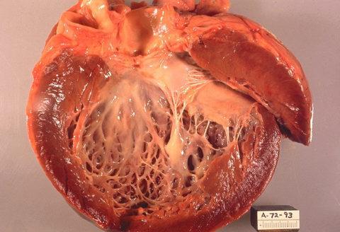 Тиреотоксическая кардиомиопатия является основой патогенеза сердечной недостаточности при тиреотоксикозе