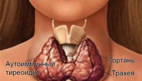 Увеличение щитовидной железы при аутоиммунном тиреоидите
